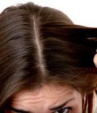 coiffure pellicule