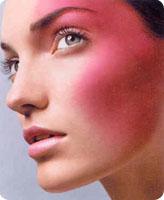 La rosacée, symptômes et traitements