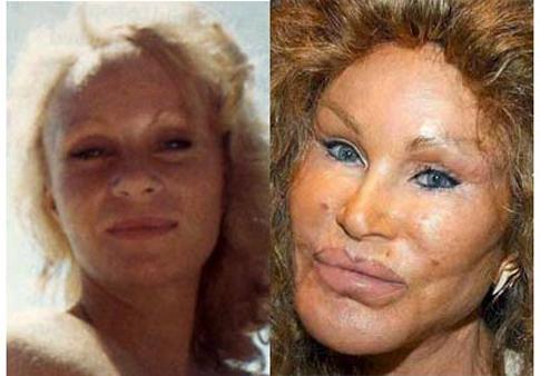 Jocelyn Wildenstein avant/ après la chirurgie esthétique