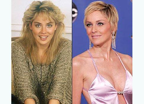 sharon stone avant/après la chirurgie esthétique