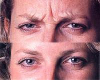 Avant et après une injection de Botox